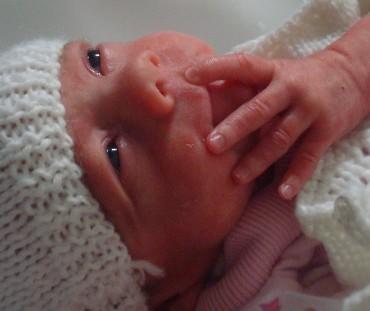 premature births